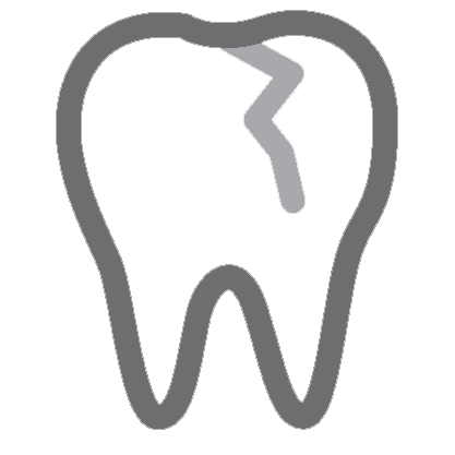 A line drawing of a tooth