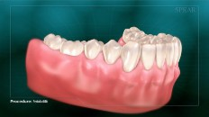 teeth damaged by gum infection
