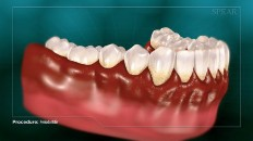 teeth with red inflammed gums