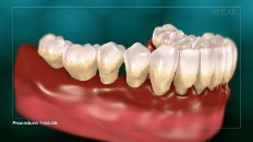 teeth with extreme gum loss