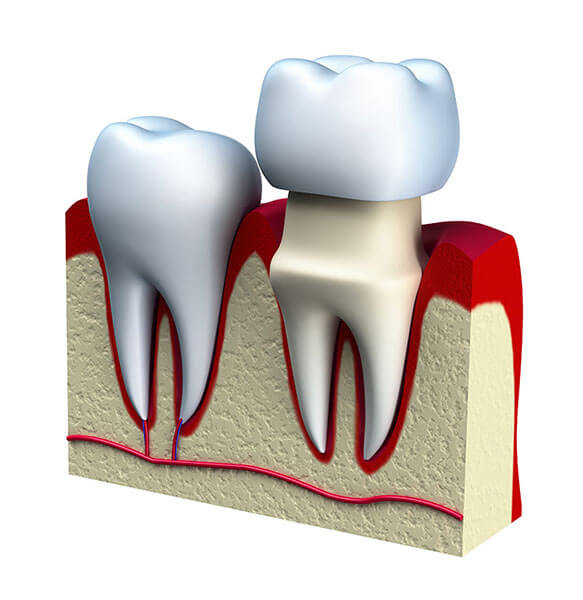 Illustration of how a crown is placed on top of a tooth.