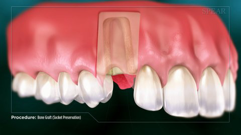 Cross section of gums with a socket in them