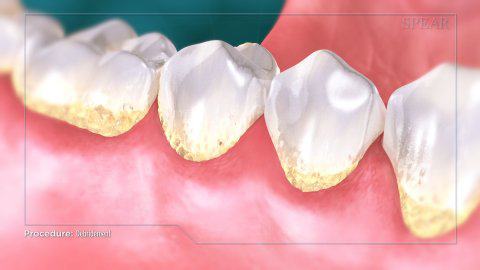 teeth with a yellow tint at the bottom