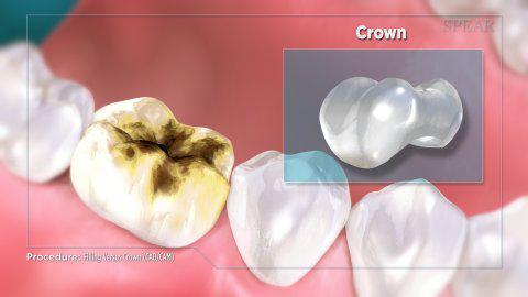 Filling vs crowns