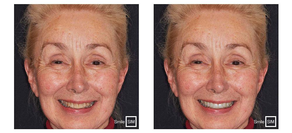 Before and after of a woman smiling