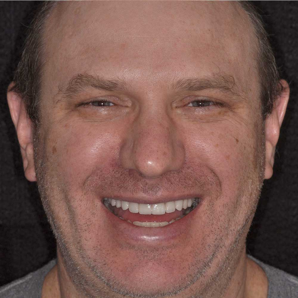 male presenting person smiling with new cosmetic dental treatment results
