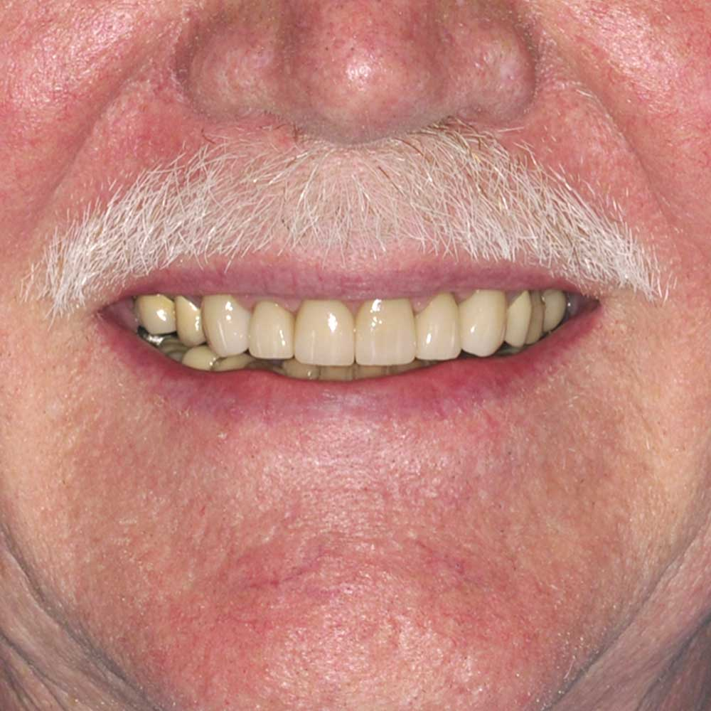 close up of a mouth with a white mustache with teeth that have been repaired via cosmetic dentistry
