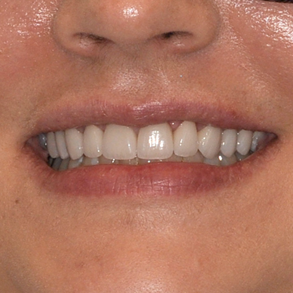 close up of a smile with white teeth that have been repaired at elite dental
