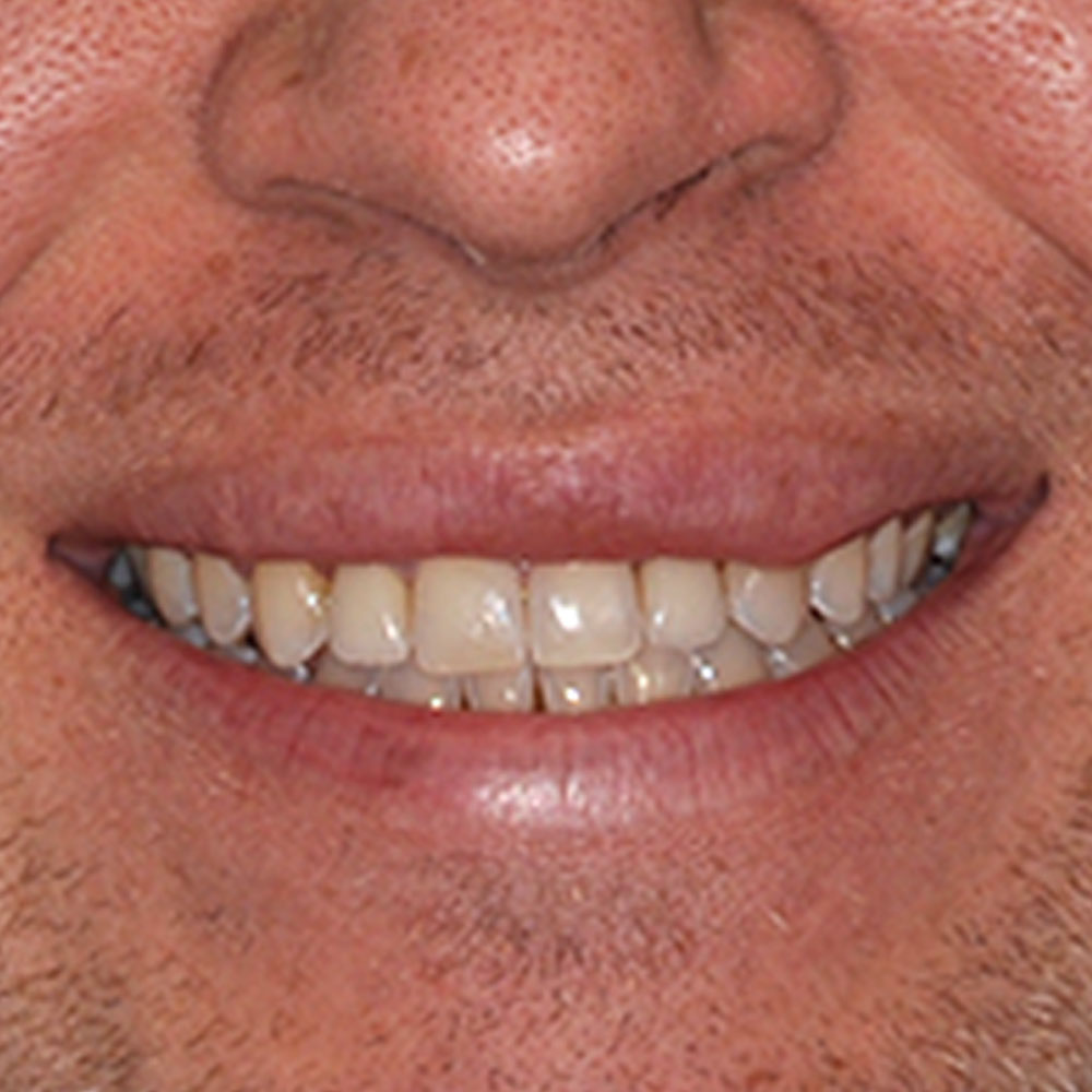 close up image of a smile that has been repaired