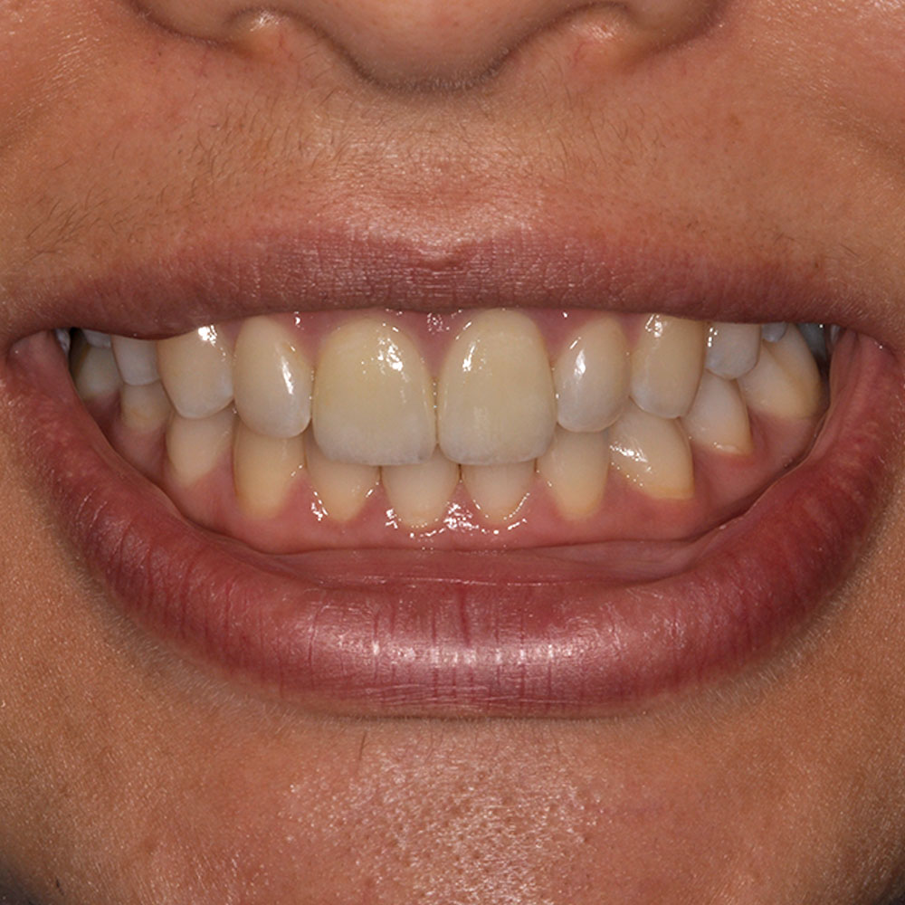 close up of a smile that has been repaired at Elite Dental