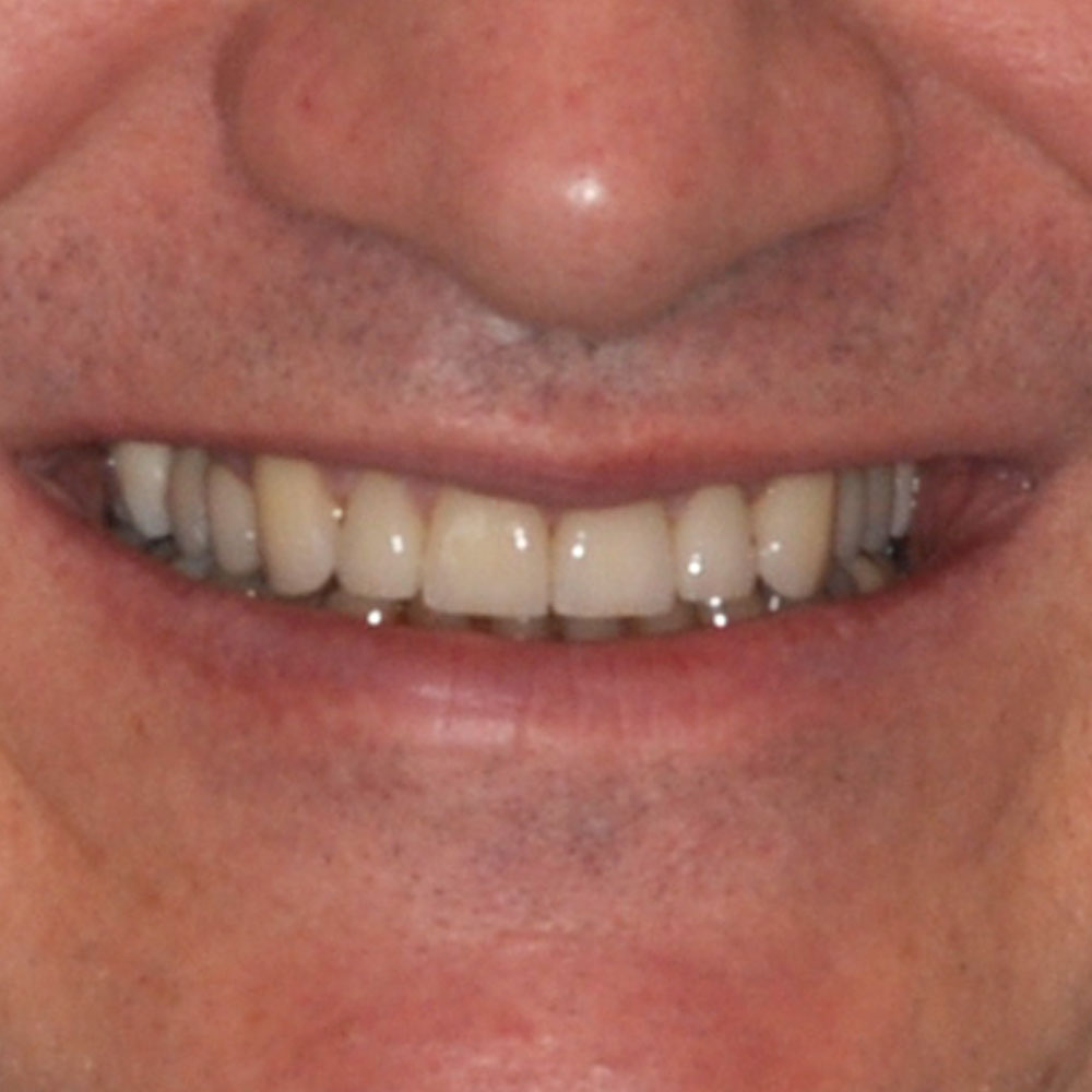 close up of a smile that's been repaired with implant dentistry