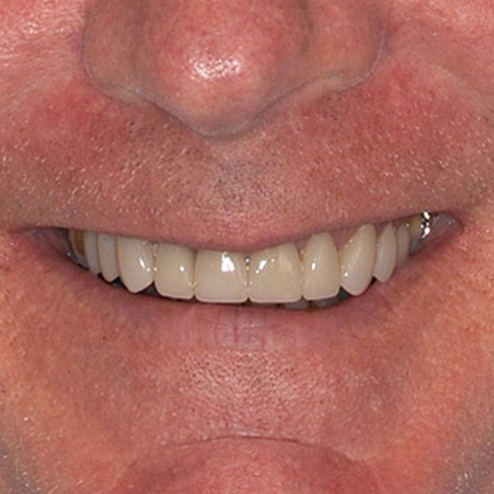 close up smile with repairs to damaged teeth