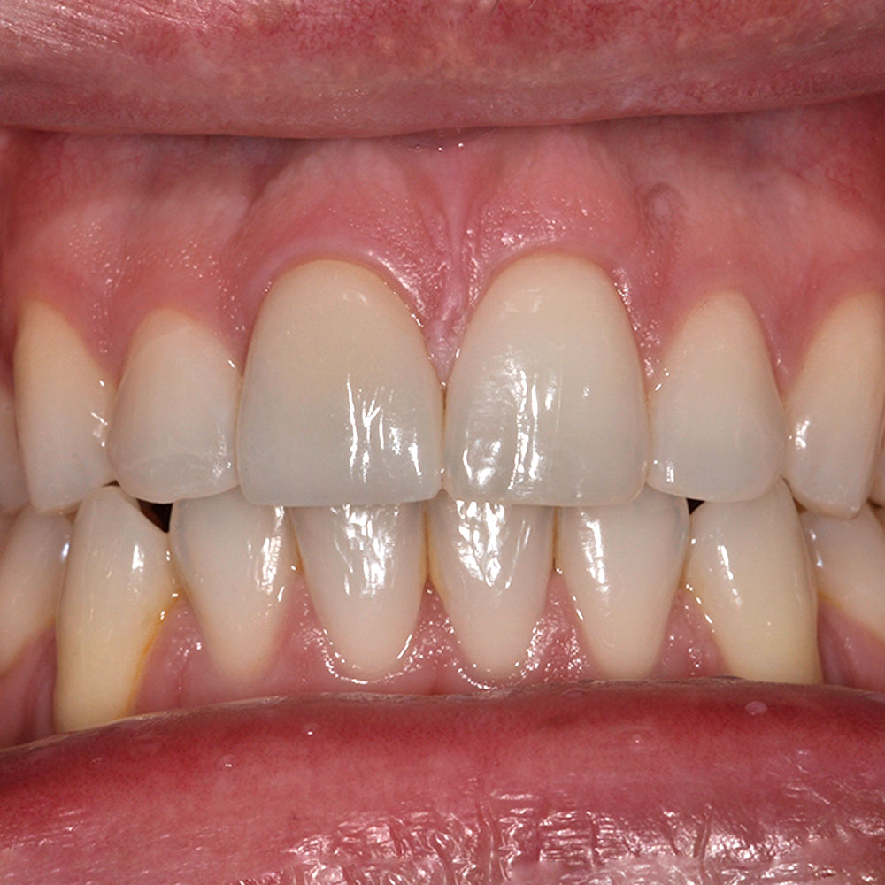 a close up of a smile with teeth that have been repaired at Elite Dental