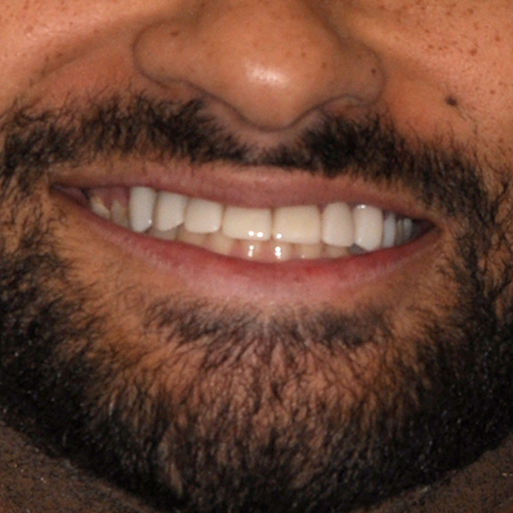 Smile that's been repaired with implants and bridges