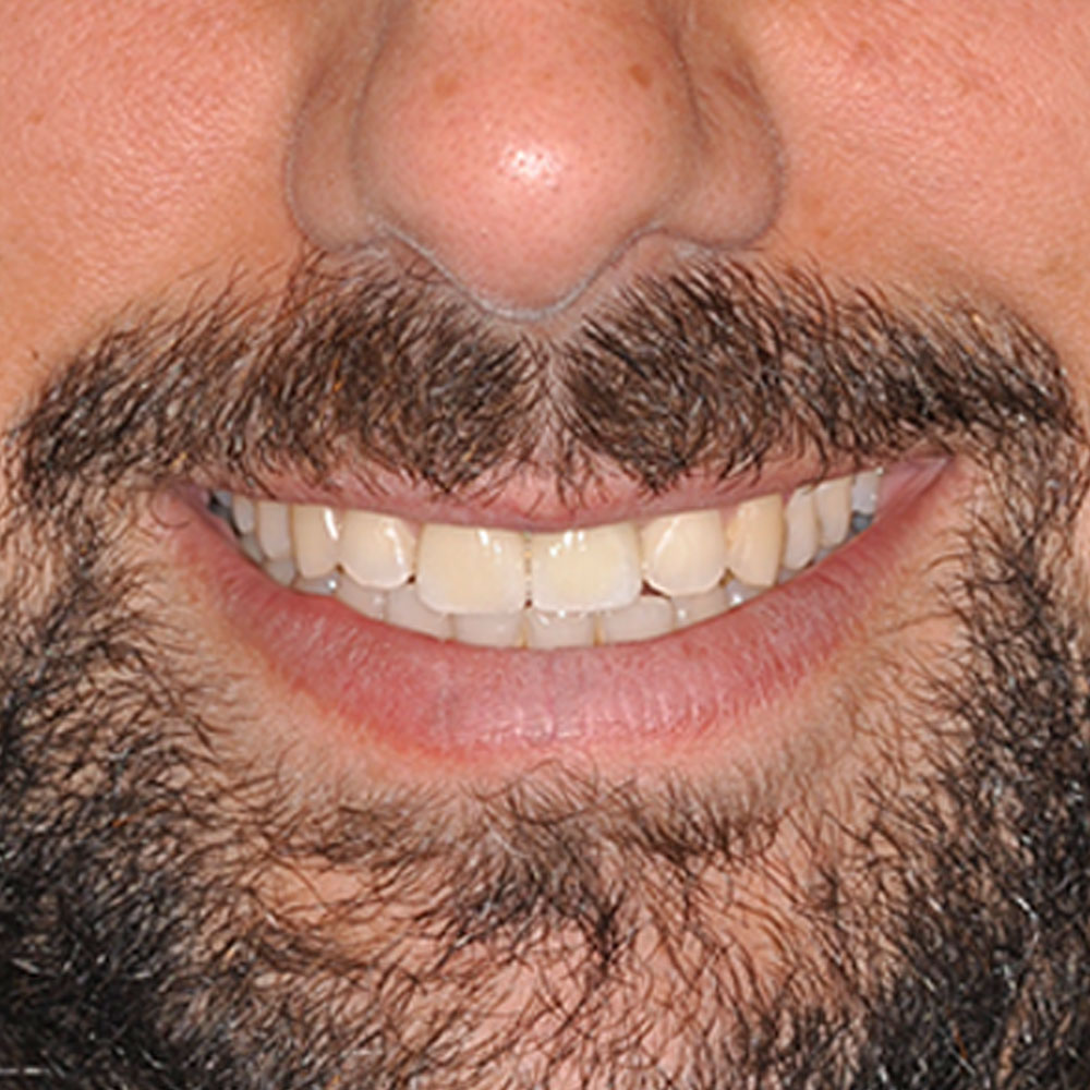 close up of a smile that has been repaired by Dr. Hartman to be even and white