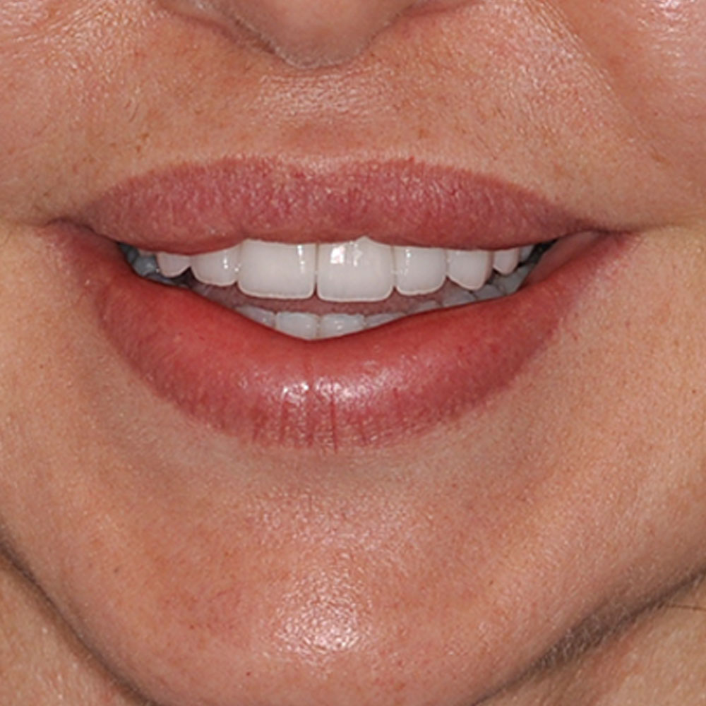 a close up of a smile with teeth that have been repaired to be even and perfectly white