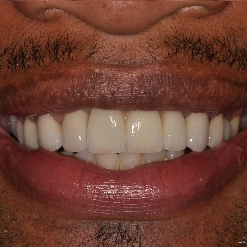 close up of a smile that has been restored