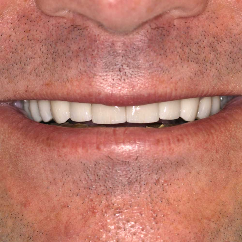 close of a mans smile with straight white teeth
