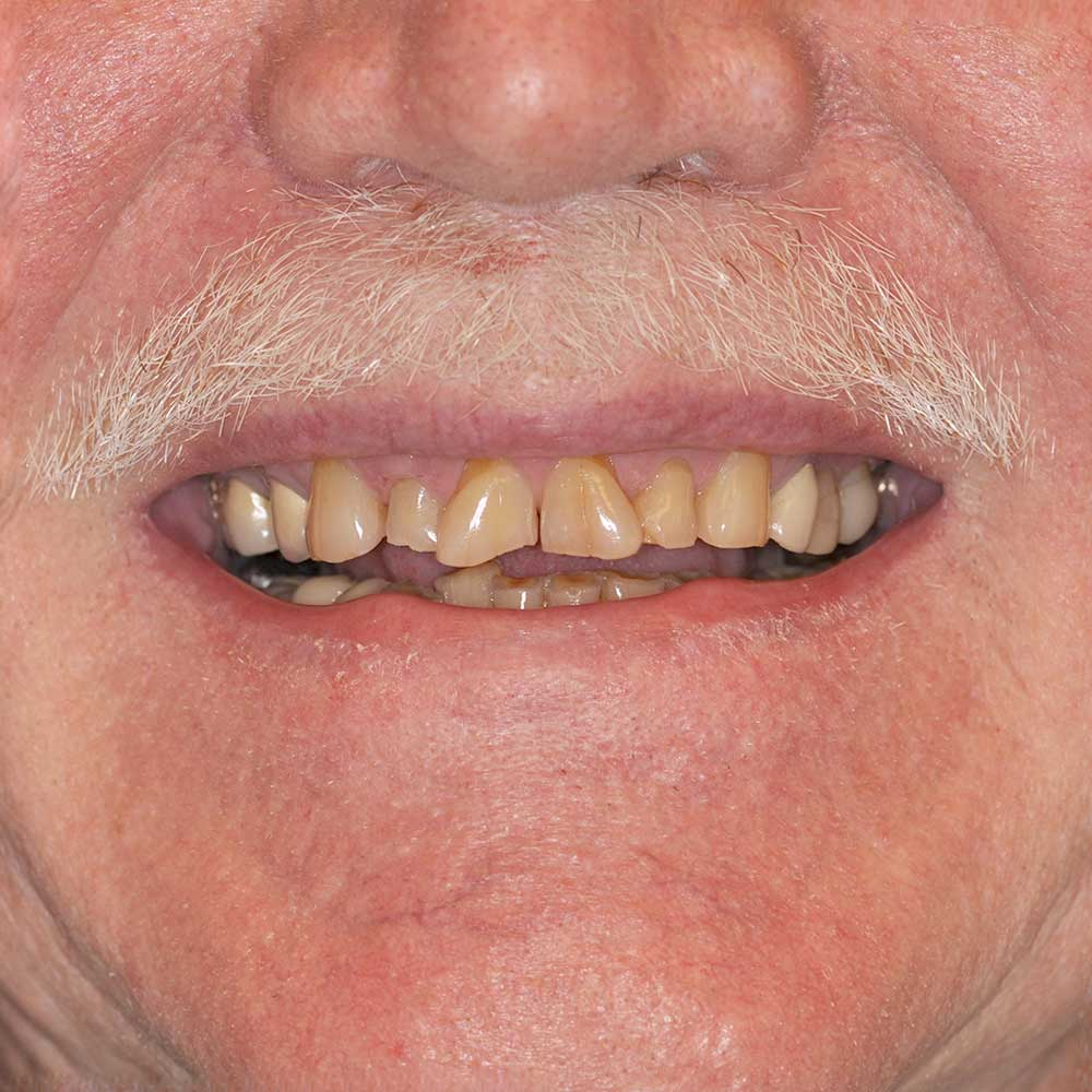 close up of a mouth with a white mustache with stained, damaged teeth