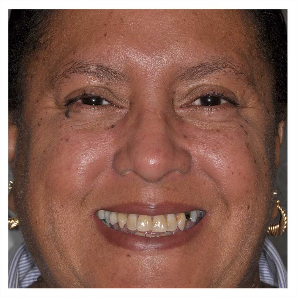 A woman's face with discolored teeth.