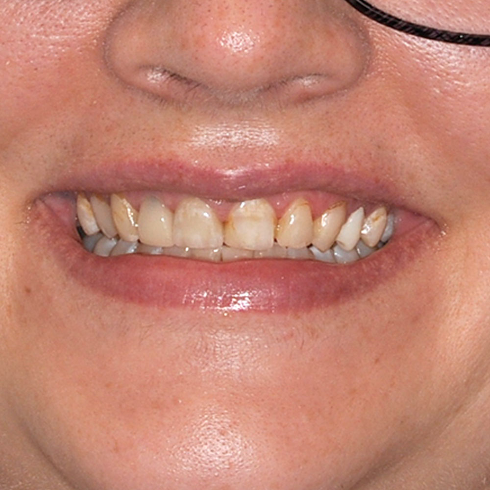 close up image of a smile with stained, misaligned teeth