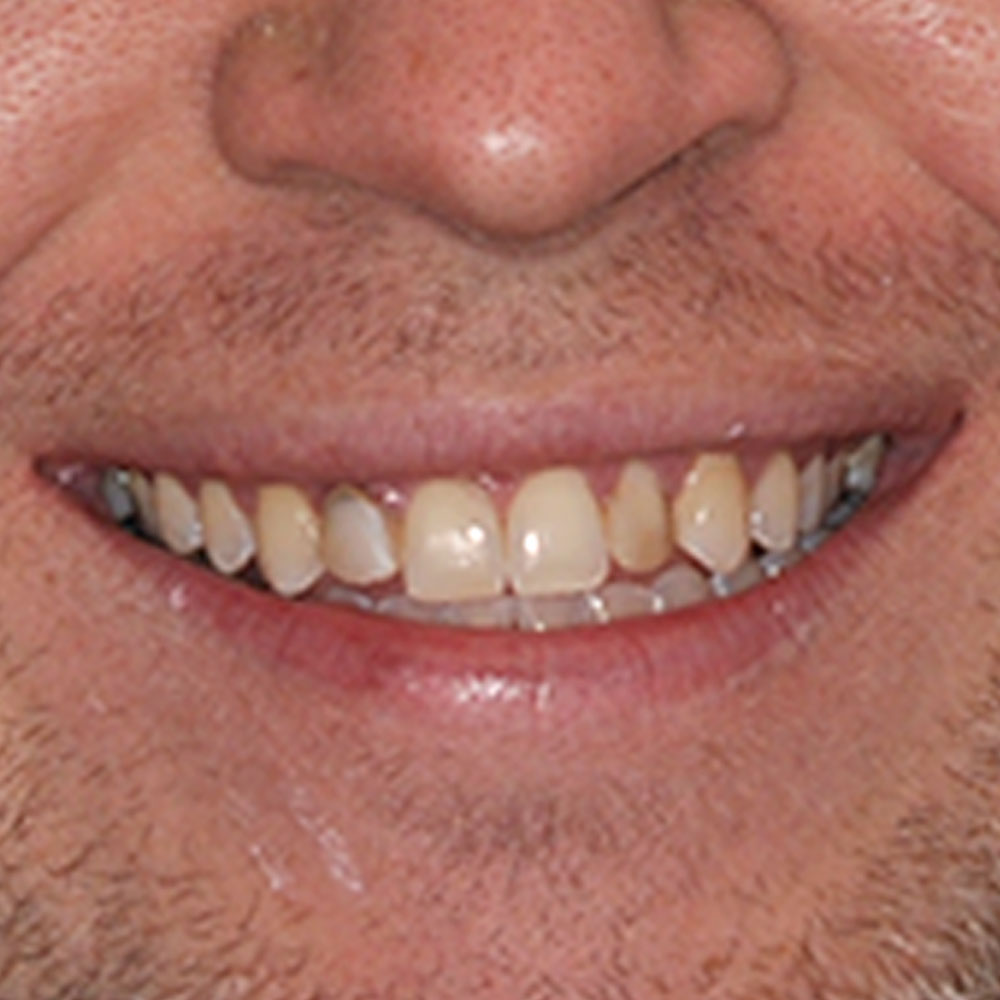 close up of a damaged smile
