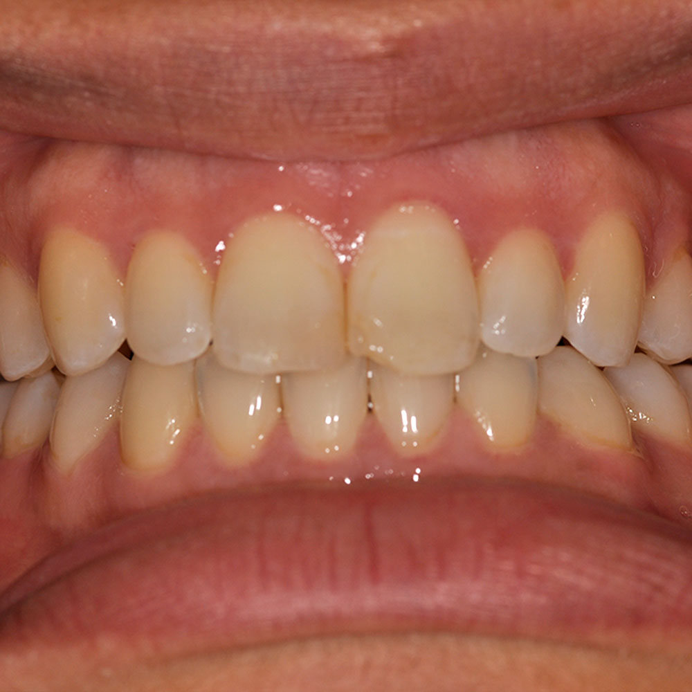 close up of a smile with teeth that are chipped and misaligned