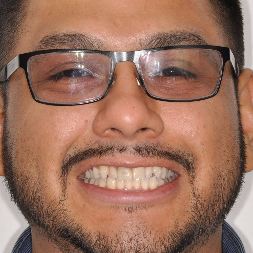 Full face image of a person with glasses that has damaged teeth
