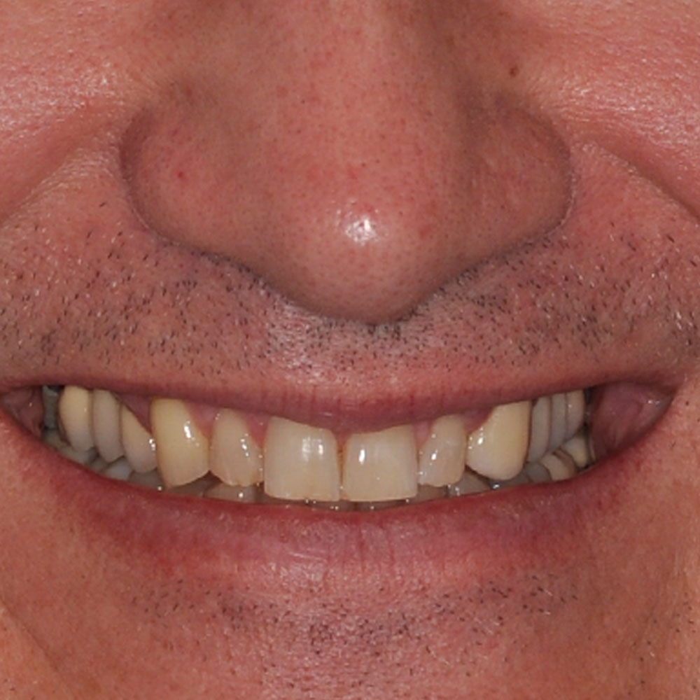 close up of a smile with yellowed teeth