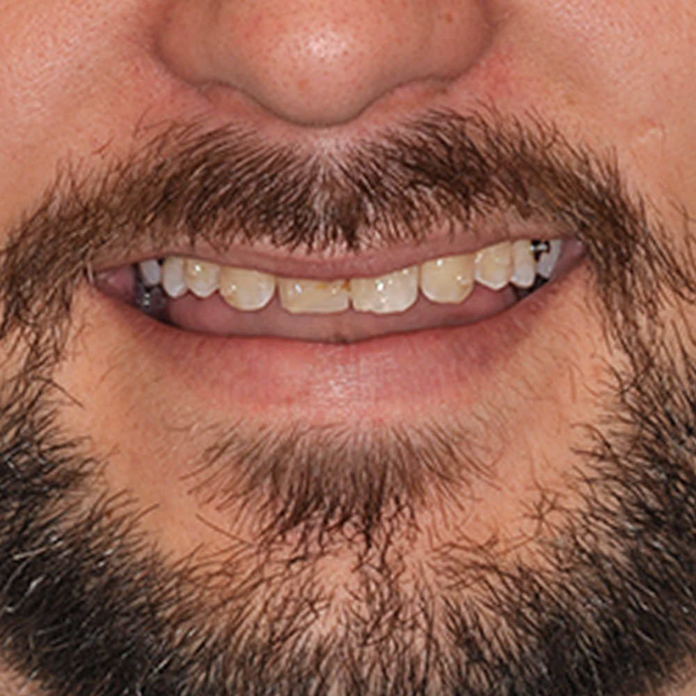 close up image of teeth that are stained and misaligned