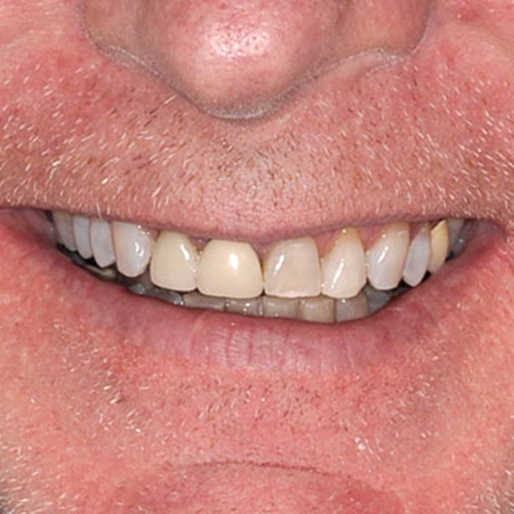 Close up of a smile with mismatched and failing restorations