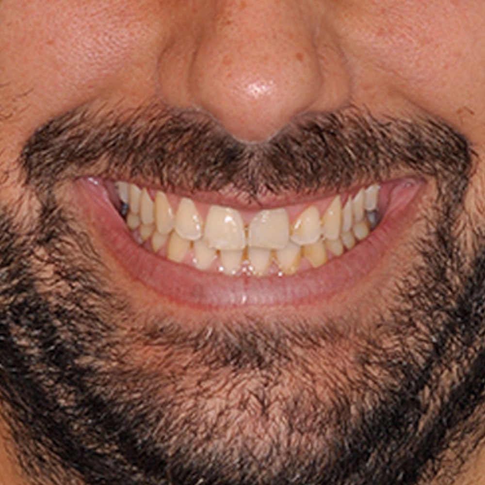 Close up of a smile that has staining, yellow teeth, and misalignment