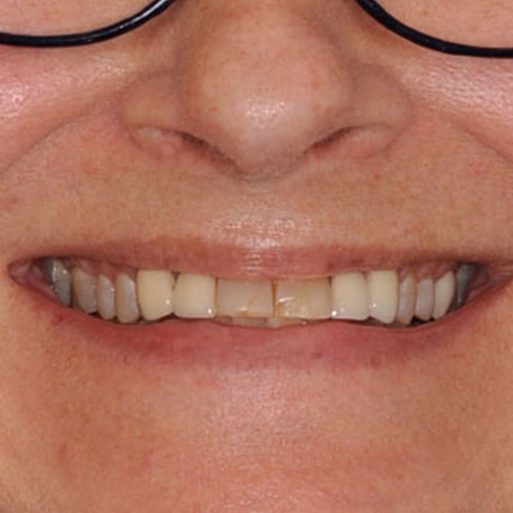 a close up of a smile with very uneven color and shape