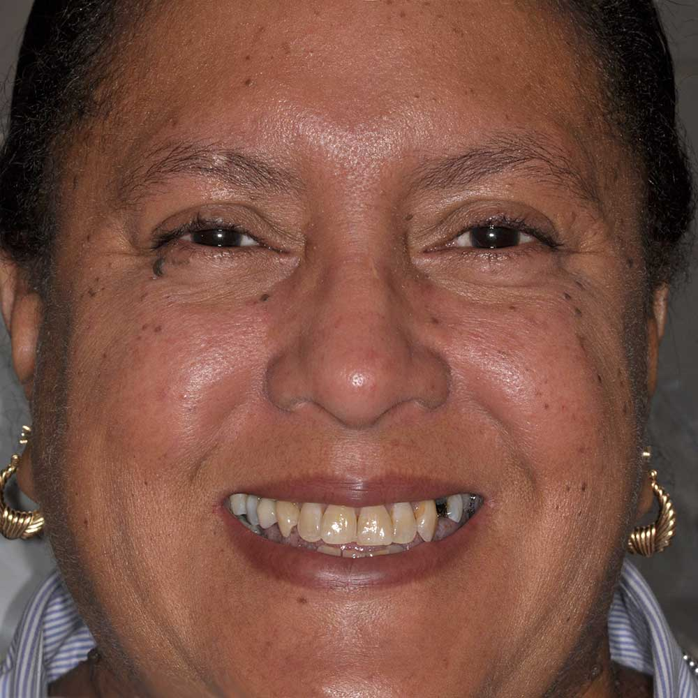 a full face image of a woman with failing dental restorations and missing teeth