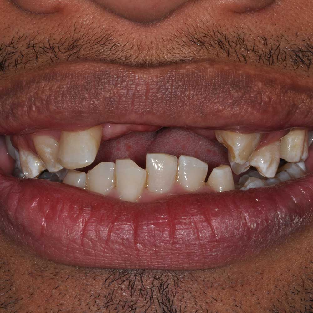 close up of a smile missing front teeth