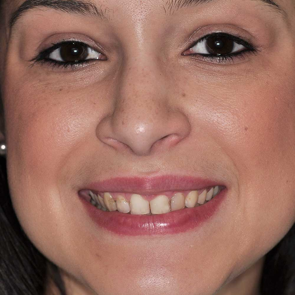 full face image of a young woman with small, stained teeth