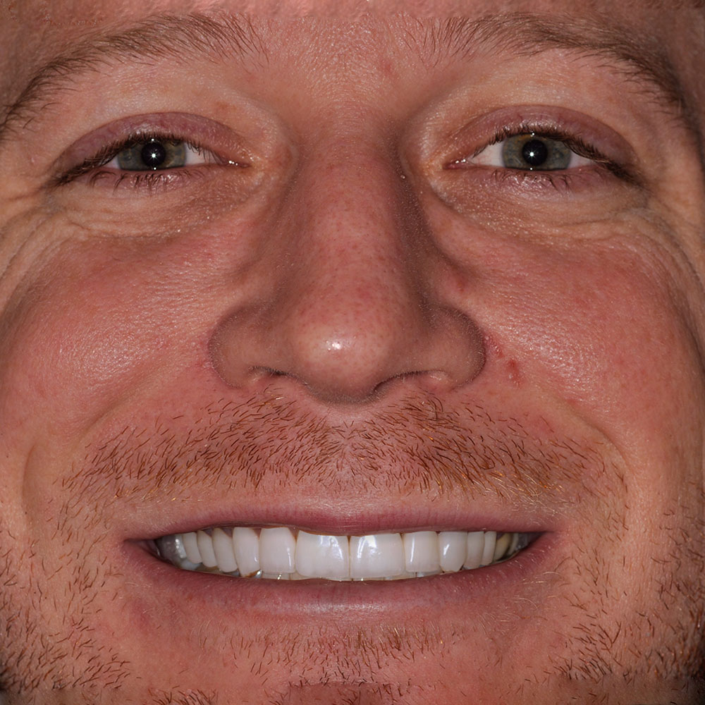 smiling young man with stubble with teeth that are simulated to be repaired