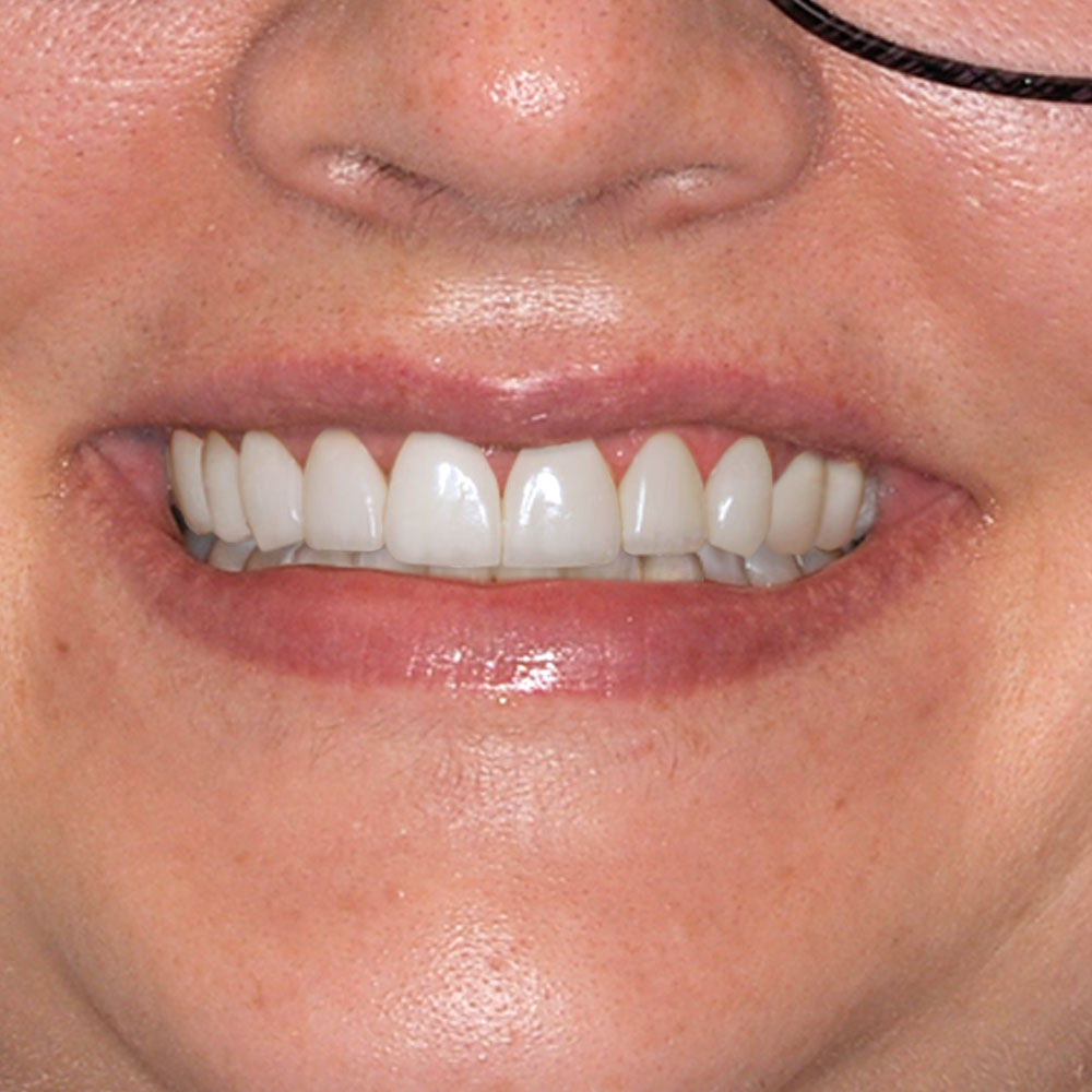 close up of a smile with teeth that are simulated by an artist with the requested repairs