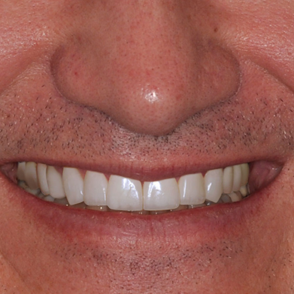 close up of a smile with simulated repairs to the teeth