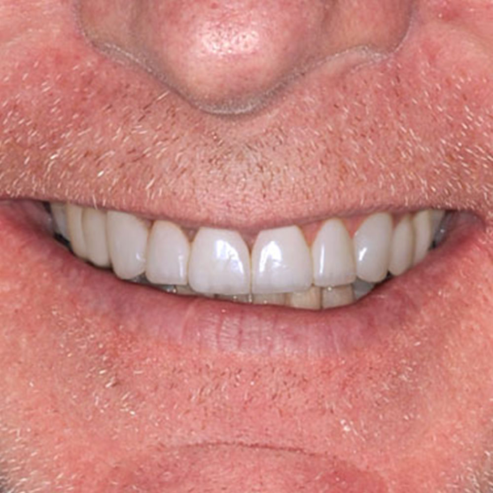 close up image of a smile with white, straight teeth that are a simulated version of the doctors proposed dental repairs