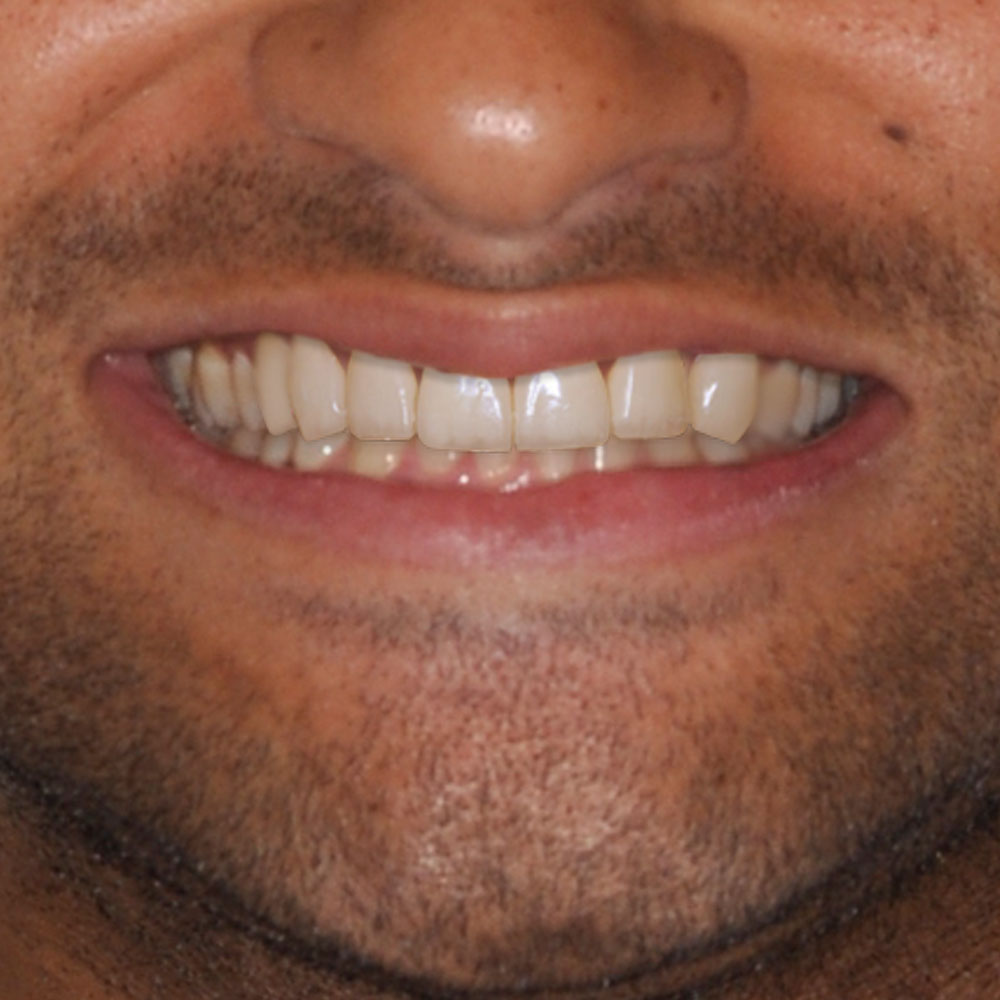 Simulation of proposed repairs to a smile