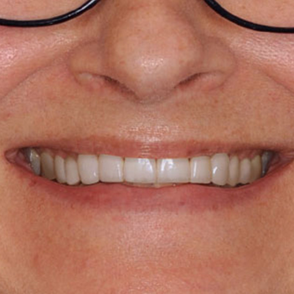 a simulation of proposed repairs to restore a patients smile