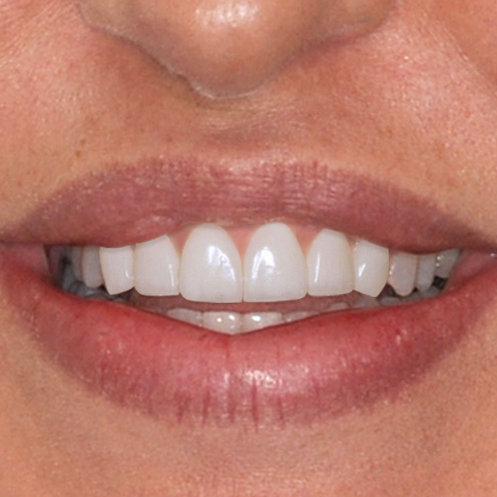 simulated changes that the patient has requested for their smile
