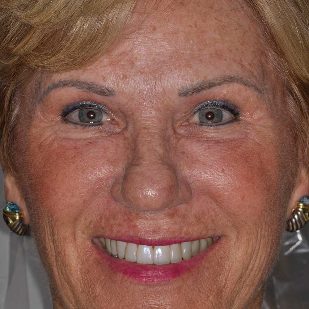 full face image of a woman with damaged teeth that have been digitally simulated to illustrate repairs