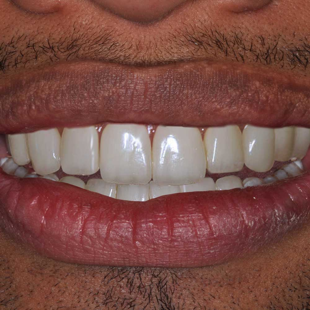 close up smile image of a mouth with dental restorations