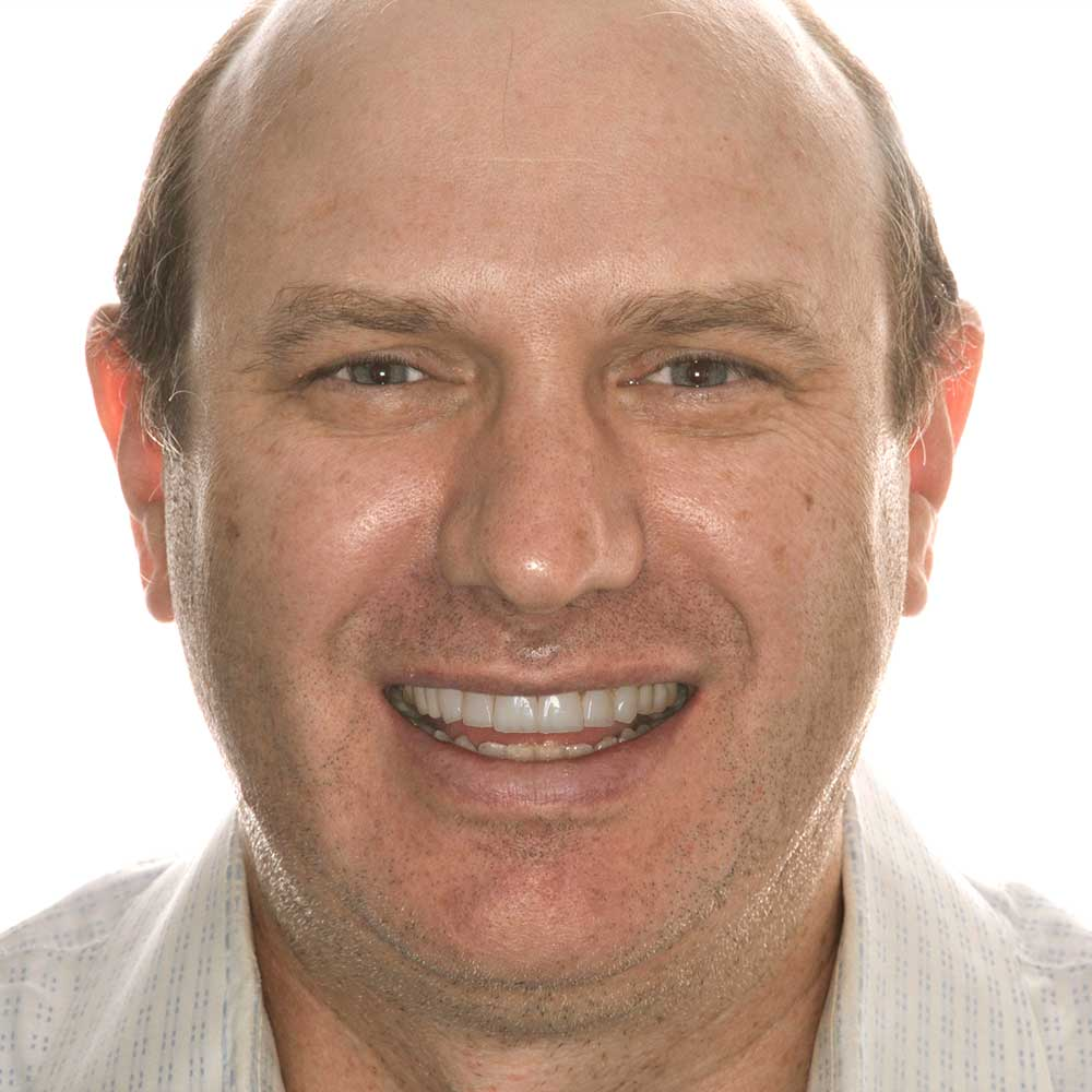 simulation of middle aged man with teeth that have been digitally improved by an artist