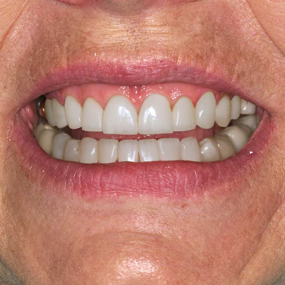 close up of smiling mouth with teeth digitally simulated with repairs