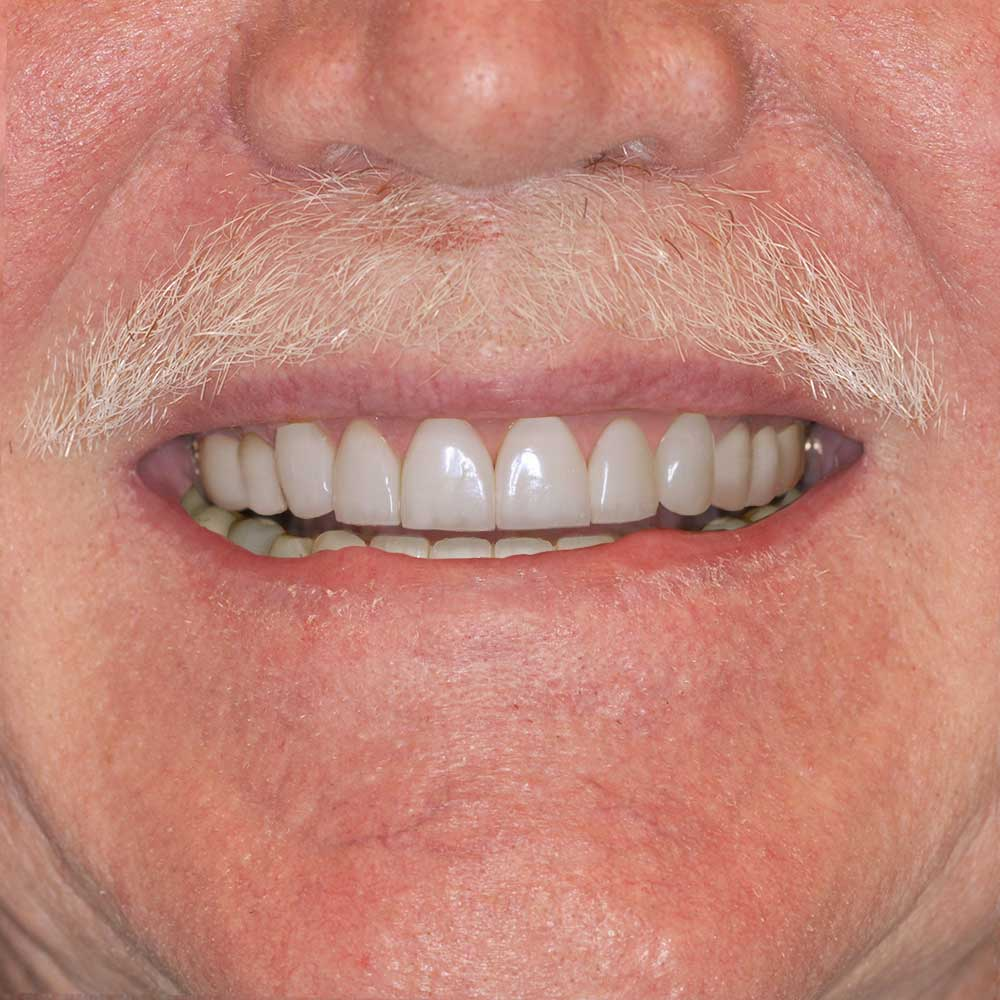 close up of a mouth with a white mustache with teeth that have been simulated with repairs