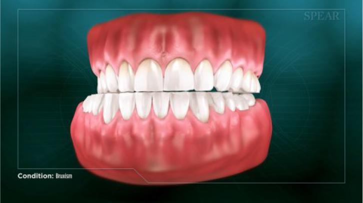 full set of teeth