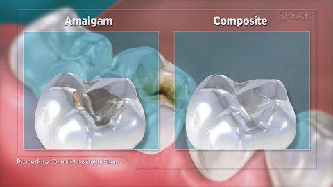 Composite vs amalgam filling